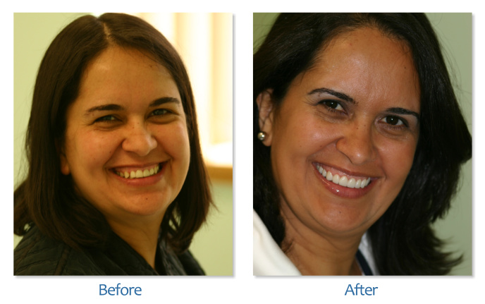 Dental Veneers South Boston