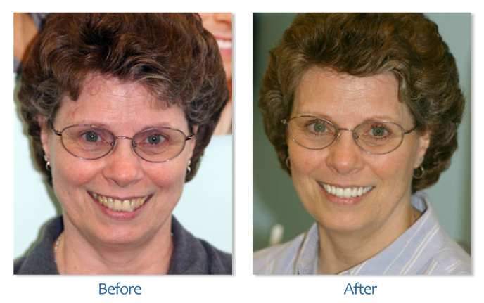 Dental Implants South Boston